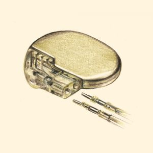 pacemaker stimulateur